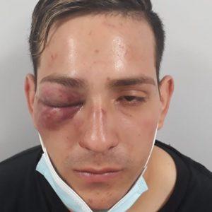 Kevin joven golpeado por carabineros