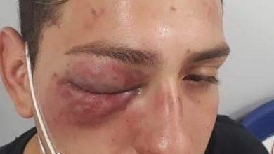 Kevin   joven golpeado por carabineros   brutal golpiza de carabineros